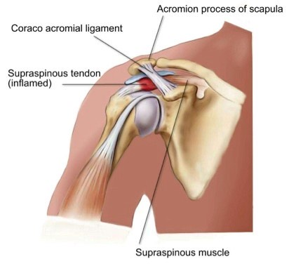 My battle with shoulder impingement syndrome
